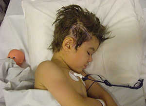 reighven's-surgery-ucsf-benioff-childrens-hoapital-oakland.