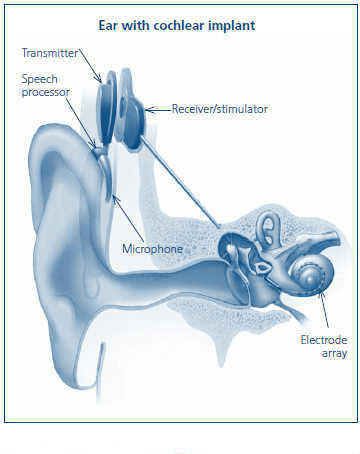 Ear with cochlear implant.