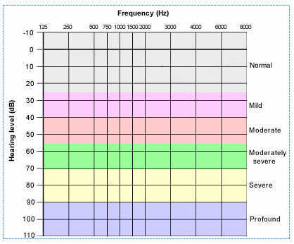 Frequency (Hz)