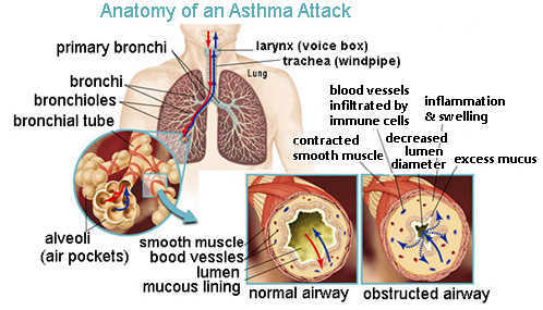 Living With Asthma Ucsf Benioff Childrens Hospital Oakland