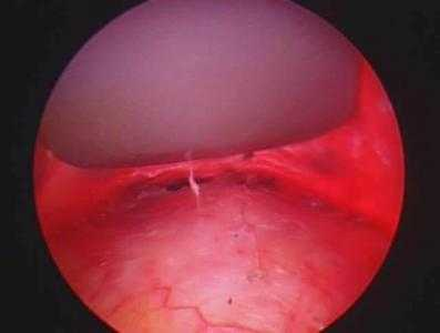 removing the dermoid endoscopically