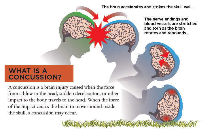 Concussion Guide Ucsf Benioff Children S Hospital Oakland